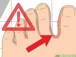 3 Ways to Stop Itchy Feet - wikiHow
