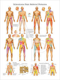 Pain Referral Patterns Impressive Sclerotome Visceral Pain Referral Poster 48 X 48 Physio