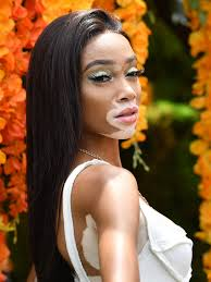 winnie harlow says hair makeup artists are still failing black models allure