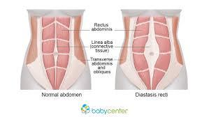 Diastasis Recti Babycenter