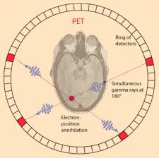 how a pet scan works how do pet scans work physics fiat physica blog