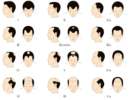 Male Pattern Baldness Cure Unique Male Hair Baldness Patterns AGA Androgenetic Alopecia Hair