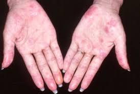 Obat Penyakit Lupus