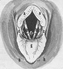 left laryngeal hemiplegia