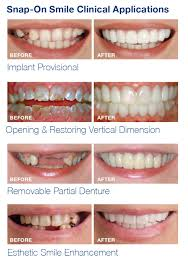 snap on smile crooked teeth. snap on smile , cheshire snap-on smile, which easily \u0027snaps\u0027 over crooked teeth n