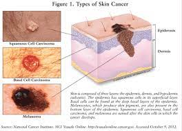 immunotherapy for skin cancer