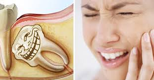 Mọc răng khôn khiến bạn không thể ăn uống bình thường