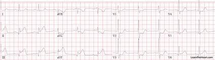 Coronary Artery Disease Stemi Topic Review Learntheheart Com
