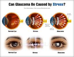 Glaucoma Bright Lights Can Glaucoma Be Caused By Stress