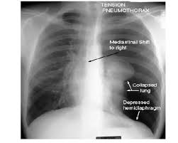 Pneumothorax X Ray What Is The Difference Between Pneumothorax And Tension
