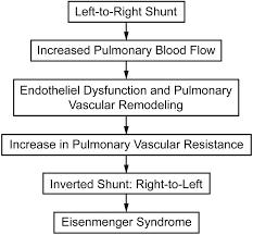 Pathophysiology Of Ventricular Septal Defect In Flow Chart Eisenmenger Syndrome Not Always Inoperable Respiratory Care