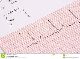 Ekg Chart Stock Photo Image Of Signal Beat