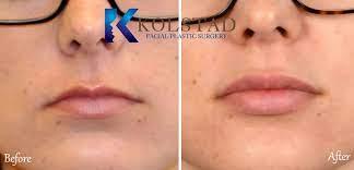 lip augmentation dr kolstad san