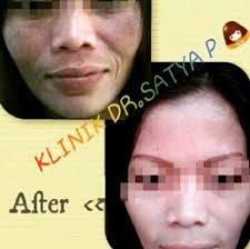 Efek samping peeling, wajah - tanya alodokter