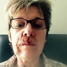 Says Woman Oil Sunbathed Olive Cancer Skin Vinegar And Who Using 0nIrqxC0w