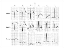 St Segment Elevation In Conditions Other Than Acute Myocardial