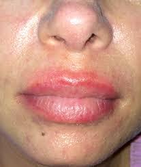 Skin Allergy Doctors in Florida | Skin Treatment