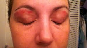 before an upper lip or eyebrow wax