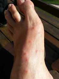 22+ Do Bed Bugs Bite Feet Images
