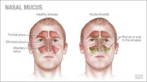 Sinus Chart Mayo Clinic Q And A Nasal Mucus Color What Does It Mean