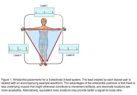 Ekg Lead Placement Chart What Is The Correct Electrode Placement For A Conventional
