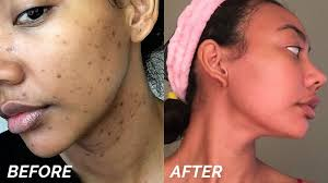 Light Blotches On My Face How To Get Rid Of Dark Spots Hyperpigmentation Fast