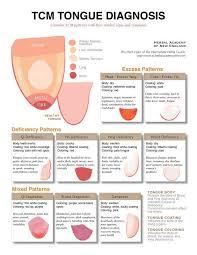Traditional Chinese Medicine Tongue Diagnosis Charts