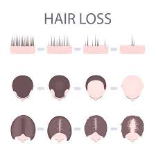 Female Pattern Hair Loss Amazing Male And Female Pattern Hair Loss Set Stages Of Baldness In