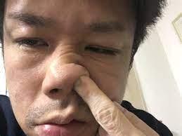鼻くそ が 臭い