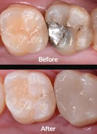 Dental Inlay Dental Inlays Archives Neri Pinzuti