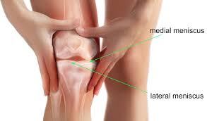 acupuncture improves knee meniscus repair