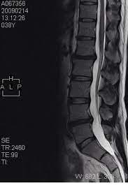 腰椎 椎間板 症