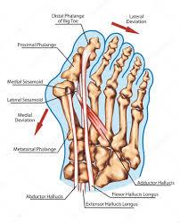 「外反母趾 関節 フリー」の画像検索結果