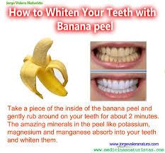 homemade teeth whitening with banana l
