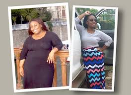 how it feels before and after losing weight with gastric sleeve surgery you