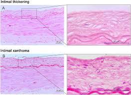 intracranial atherosclerosis