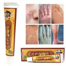 Sun 15g Herbal Ointment Psoriasis Dermatitis Eczematoid Eczema Skin ...