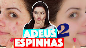 Image result for como acabar com as espinhas