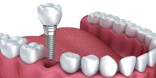 Image result for dental implant