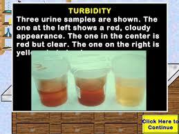 Urine Turbidity Chart Urinalysis Lab