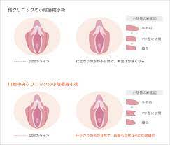 小 陰唇 腫れ