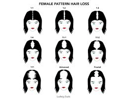Female Pattern Hair Loss Custom Female Hair Loss Hair Treatment In Seattle Portland Gabel Center