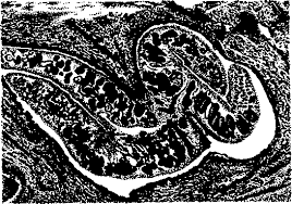 Реферат Ветеринарно санитарная экспертиза мяса при фасциолезе и  Ветеринарно санитарная экспертиза мяса при фасциолезе и дикроцелиозе