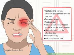 cluster headache location chart 50 fresh headache location chart home furniture