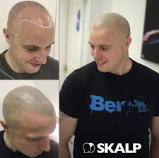 Male Or Female Pattern Baldness Treatments Custom Female Pattern Baldness Female Hair Loss Treatment Melbourne With