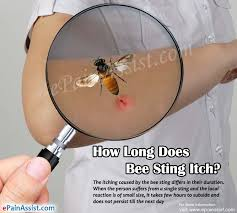 How Long Does Bee Sting Itch & What to do for it?