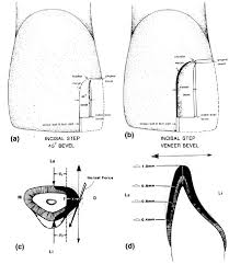 Class 1 Cavity Design Cavity Design For Class Iv Composite Resin Restorations A