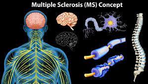 كيف شفيت من مرض التصلب اللويحي MS بالأعشاب والغذاء - حلول ذكية للمشاكل  اليومية