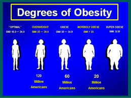 Bariatric Bmi Chart Degrees Of Obesity Oliak Center For Weight Loss