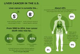 Liver Tumor Size Chart Liver Cancer On The Rise Cancer Today